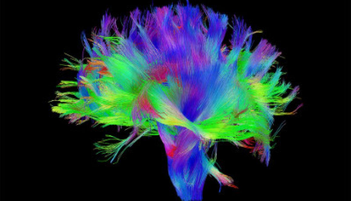 brain-wiring-400x250